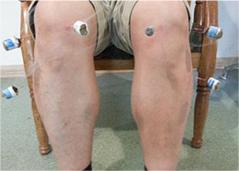 针灸理疗按摩