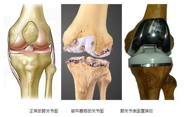 骨关节炎可以彻底治愈吗