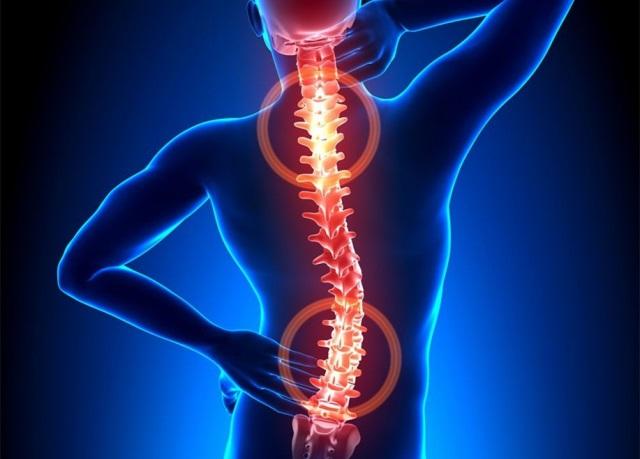 强直性脊柱炎患者