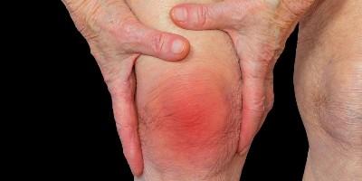 rheumatoid-arthritis-knee
