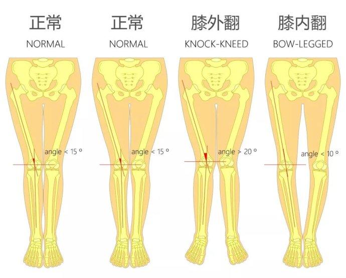 骨关节炎晚期关节畸形