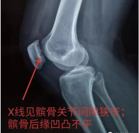 髌骨软化症X光片
