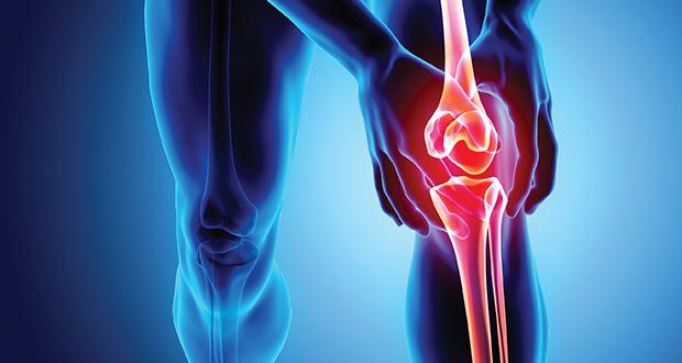 骨性关节炎诊断