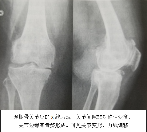 骨性关节炎X线片