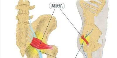 预防坐骨神经痛