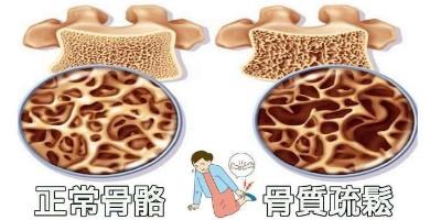 关节炎骨质疏松