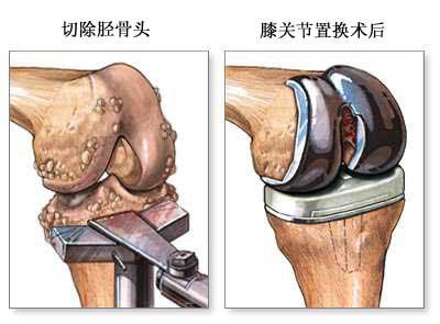 人工膝关节置换