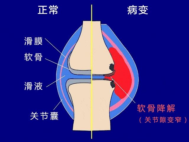 滑膜炎怎么治疗最有效