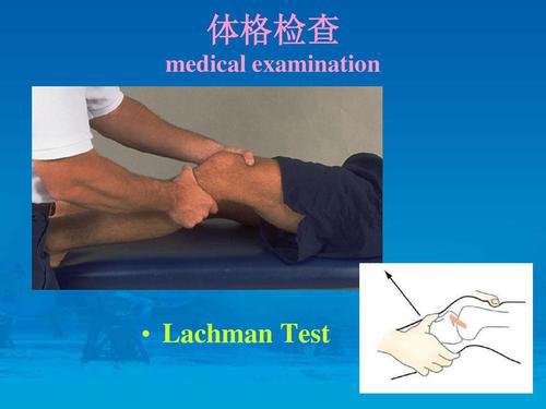 Lachman试验