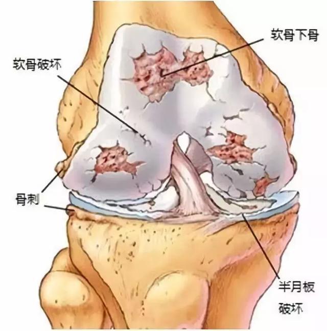 膝关节退变