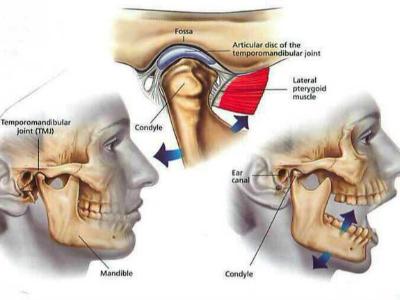 颞颌关节炎