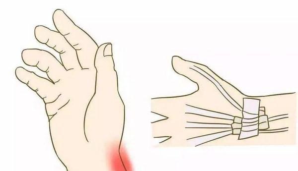 风湿病症状