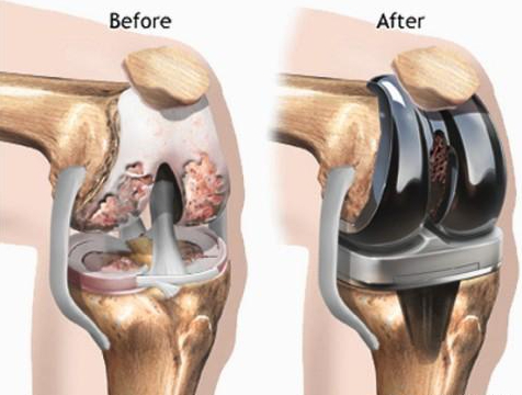 膝关节置换