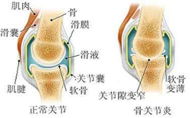 骨性关节炎关节退变