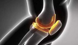 膝关节积液