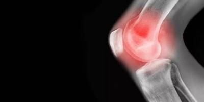 关节炎膝关节痛怎么办