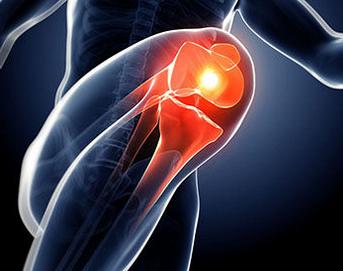 骨性关节炎多发于膝关节