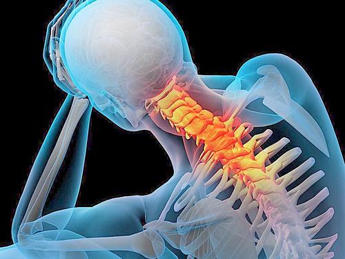 骨性关节炎多发于脊柱