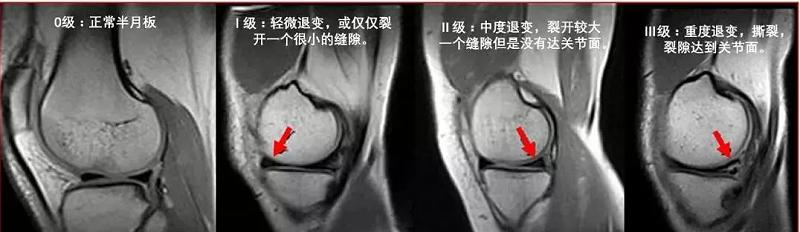 半月板损伤核磁影像