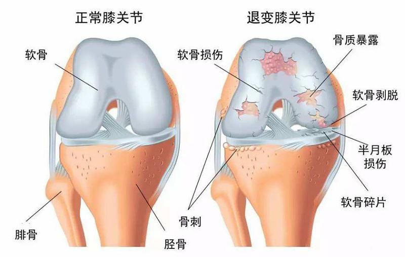 退行性关节炎关节软骨损伤