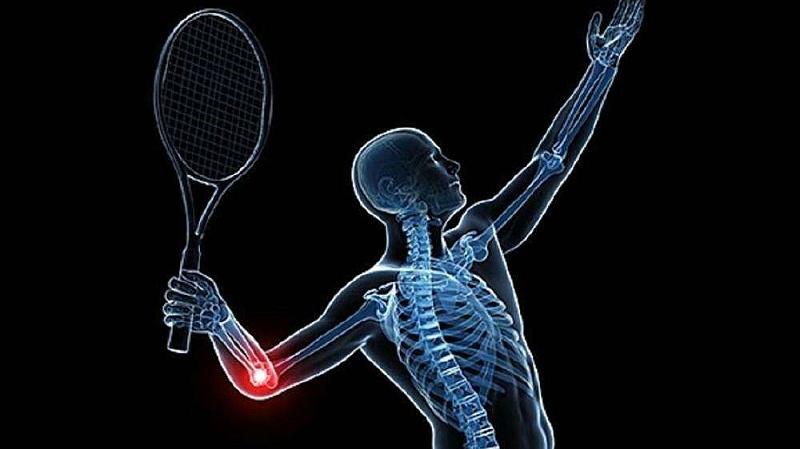网球肘治疗