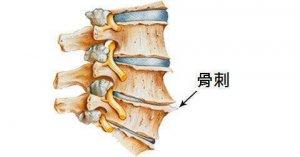 骨刺是怎么形成的?怎么治疗比较好?