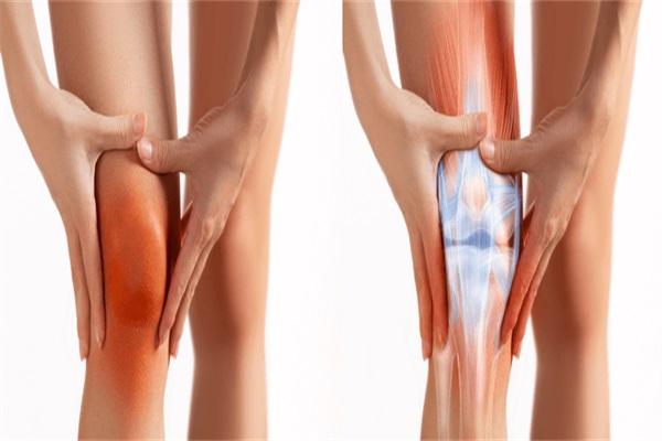 怎样治疗膝关节炎JPG