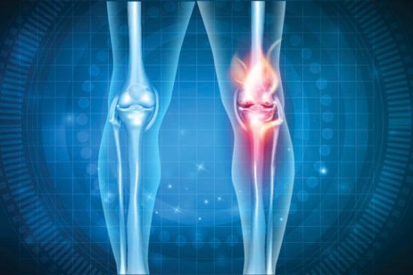 骨关节炎平时应该怎样锻炼.jpg