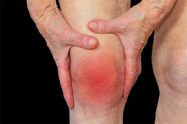 膝关节炎是怎么引起的.jpg
