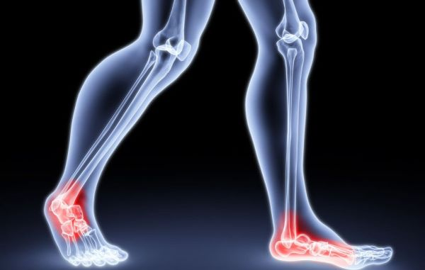 踝关节骨性关节炎