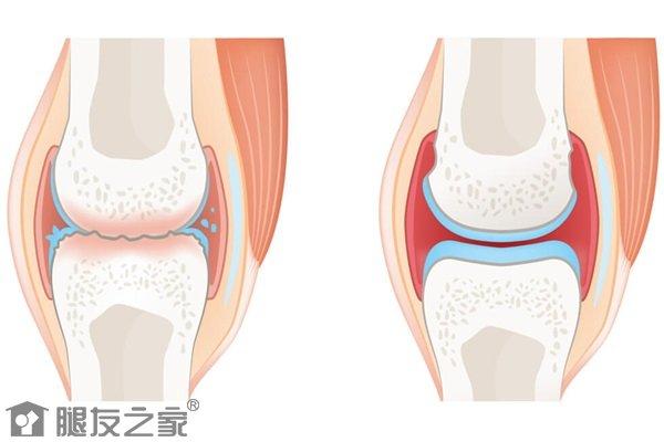 骨质关节炎怎么治疗.jpg