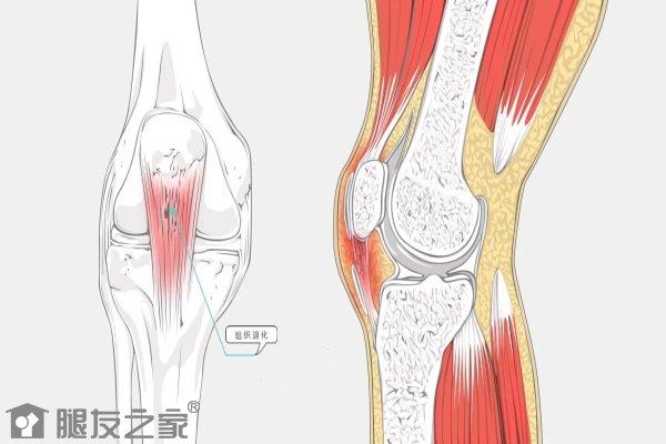 肌腱损伤后怎么处理.JPG