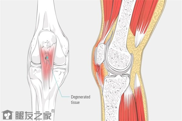 肌腱损伤的症状.JPG