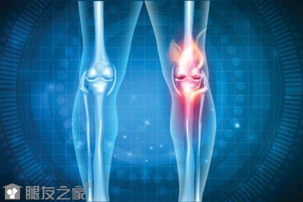 骨性关节炎的病因.jpg