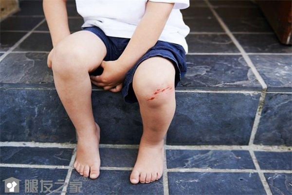 幼年型特发性关节炎怎么办.jpg