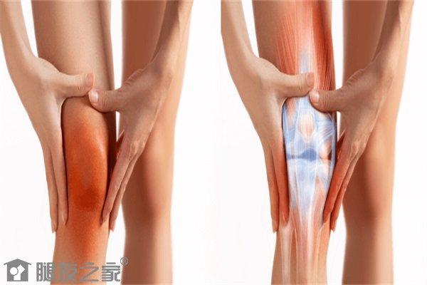 骨性关节炎如何锻炼.JPG