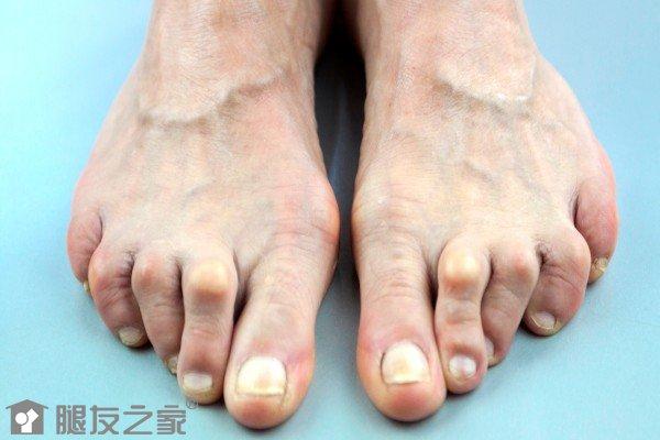 脚创伤性关节炎怎么治?.jpg
