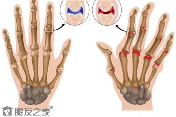 手指关节炎表现有哪些.jpg