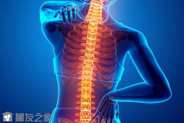 脊柱关节炎能治好吗.jpg