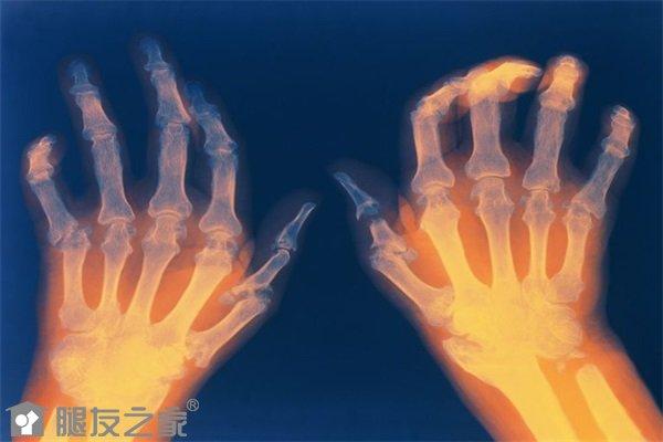 手指类风湿关节炎怎么治.jpg
