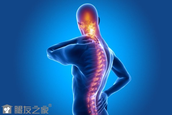 骶髂关节炎治疗方法有哪些.jpg