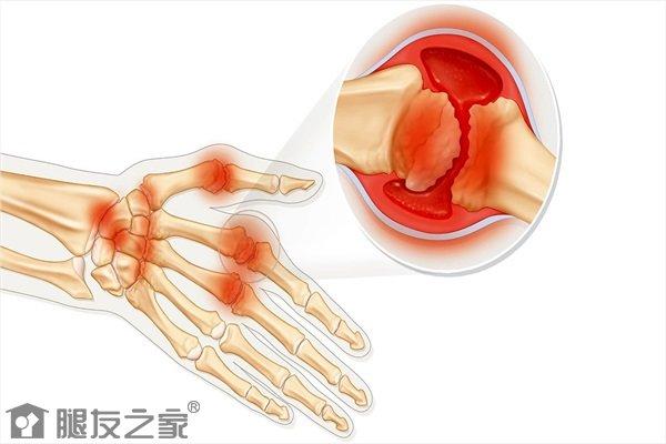 手指骨关节炎什么症状.jpg