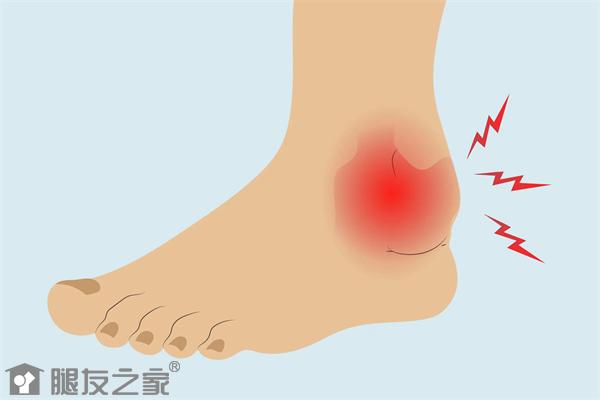 创伤性踝关节炎会瘸吗.png