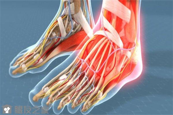 脚趾关节炎如何治疗.jpg