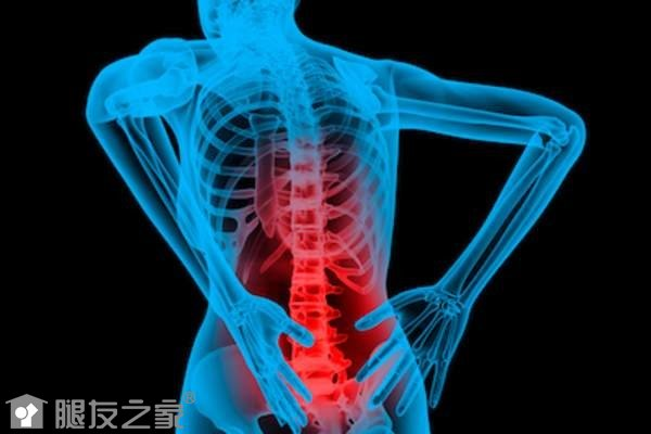 强制关节炎是什么.jpg