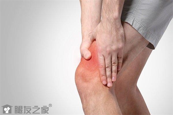 关节炎会引起的表现有哪些?.jpg
