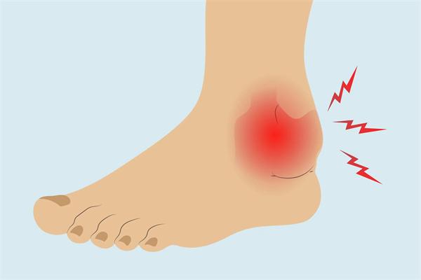 脚踝类风湿关节炎怎么治疗.png