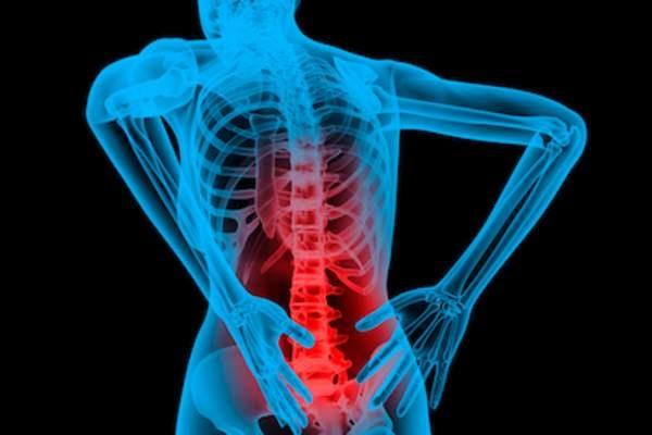 脊柱关节炎的治疗.jpg